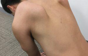 肩甲骨が気になる方へ必見!メカニズムと肩甲骨剥がしを徹底解説します!