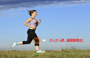 【快適なランニング生活を送るために知っておきたい】ランナー膝と鵞足炎について