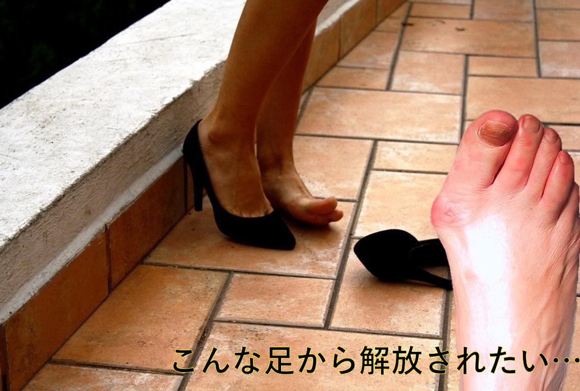 【外反母趾】を治す!ストレッチで足の痛みを解決!